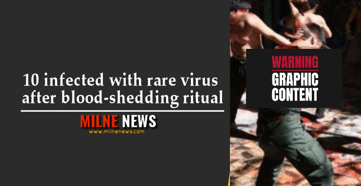 10 infected with rare virus after blood-shedding ritual